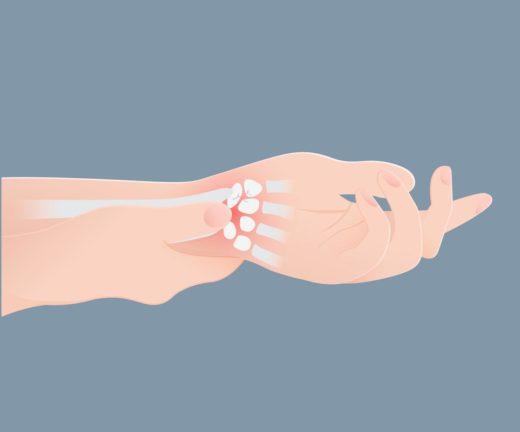 dessin poignet douloureux